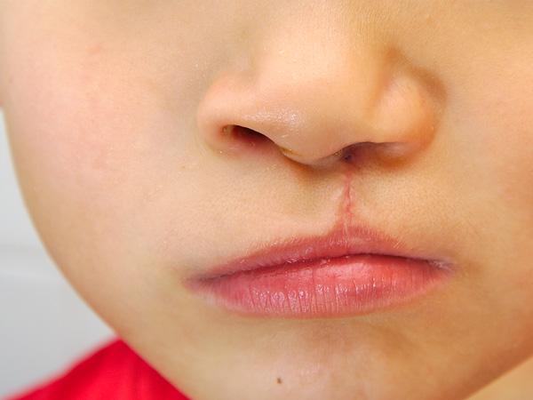 Niño con labio palatina