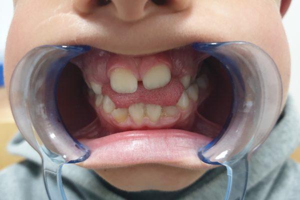 deglucion atipica reeducar la lengua